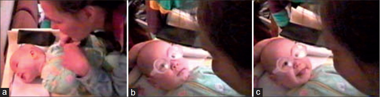 Figure 1: (a) Healthy 4-month-old infant apparently experienced the blurred image so disturbing that she turned eyes and face away from the face of the mother. (b) Refractive error of infant was +1.0 diopter in both eyes did not accommodate or converge during dynamic retinoscopy. Spectacles +4 gave the infant clear images on the retinas of objects at close distances. For a few seconds, the infant looked surprised. (c) Then, she converged and immediately smiled, copying the smile on the face of her mother. Published by permission from VISTEST. Originally, in What and How Does This Child see 2011<sup>[10]</sup>
