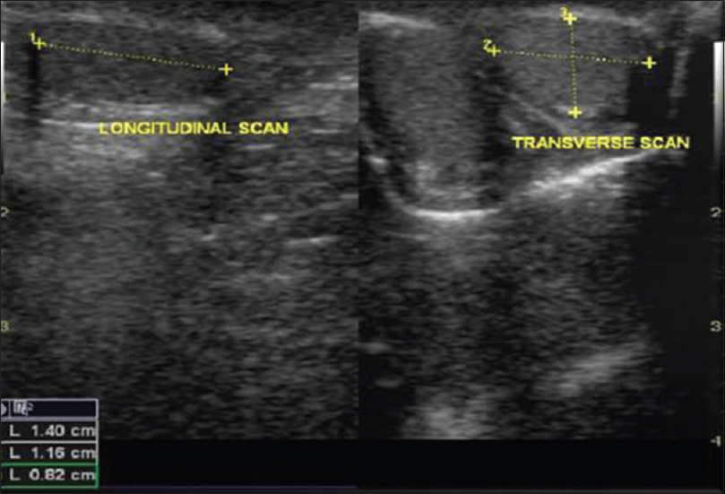 Normative ultrasonographic values for testicular volumes in Nigerian ...
